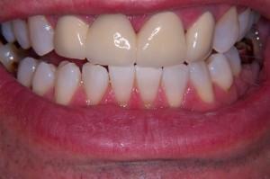 New Front Teeth Bridge Male In Beckenham Cosmetic